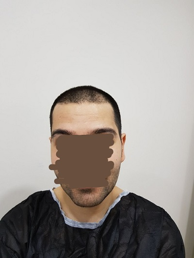 زراعة الشعر بدون حلاقة قبل العملية (3).jpg