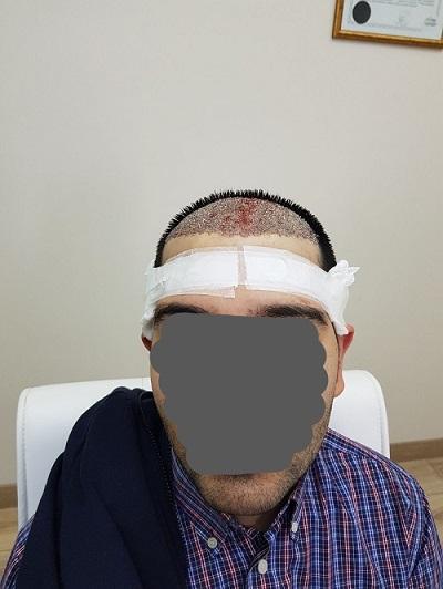 زراعة الشعر بدون حلاقة بعد العملية (3).jpg