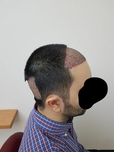 زراعة الشعر بدون حلاقة بعد الغسيل رابع يوم (3).jpg