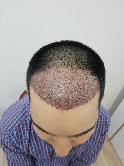 زراعة الشعر بدون حلاقة بعد الغسيل رابع يوم.JPG
