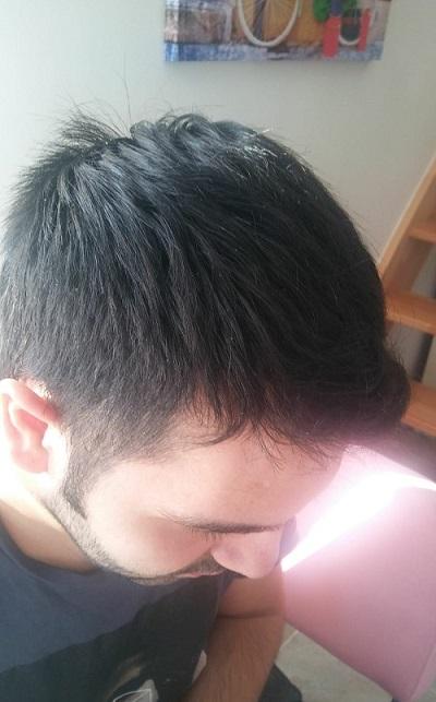 زراعة الشعر بدون حلاقة نتيجة بعد 5 شهور (2).JPG
